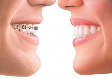 Adult braces: are my teeth worth it?