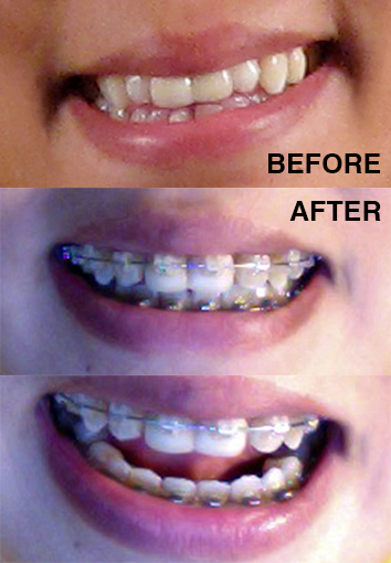 braces-beforeafter copy